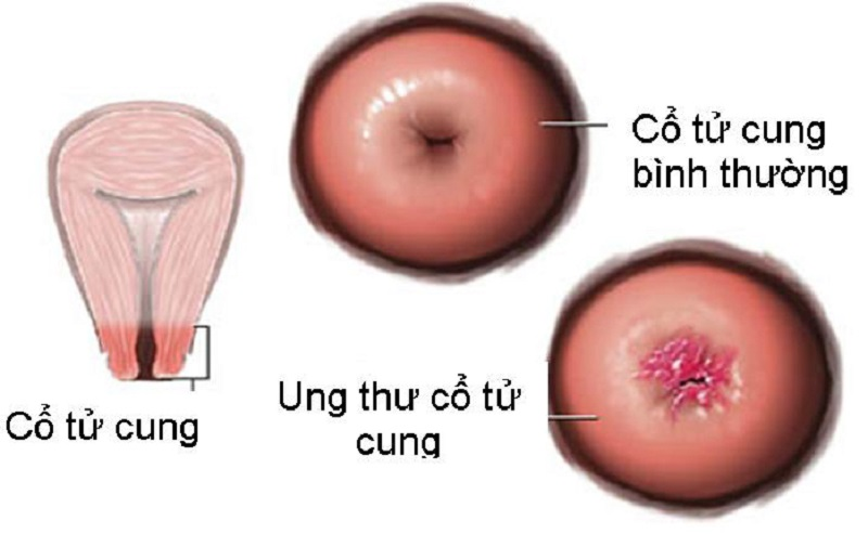 ung-thu-co-tu-cung1
