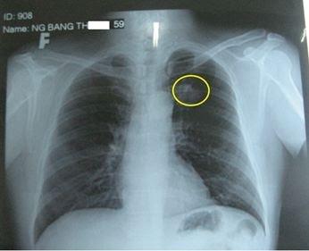 phẫu thuật chấn thương lồng ngực