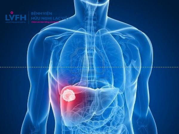 5 bệnh ung thư thường gặp ở nam giới