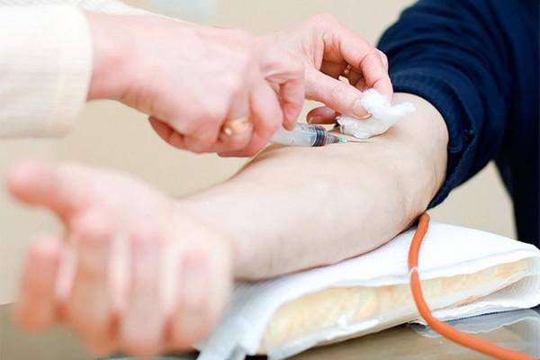 Nên làm những xét nghiệm gì khi khám sức khỏe tổng quát?