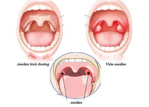 Tìm hiểu về viêm amidan và phương pháp điều trị viêm amidan