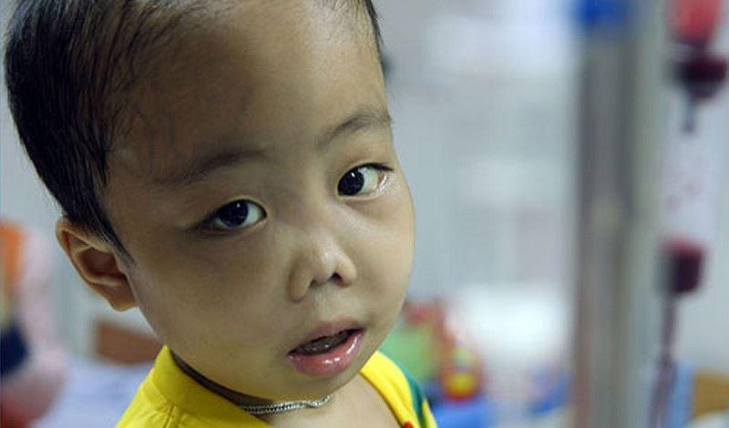 Kết quả hình ảnh cho bệnh Thalassemia