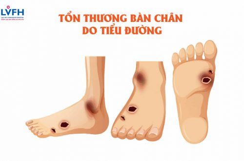 Ton Thuong Ban Chan Do Tieu Duong